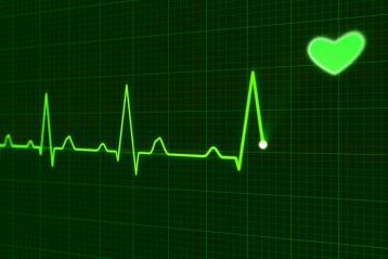 Heartbeat on a graph.